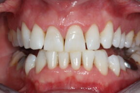 After ultrasonic Scale and Polish with the hygienist