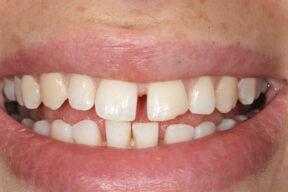 Gap in teeth, York, Orthodontics