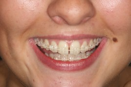 clear braces by our York Orthodontist