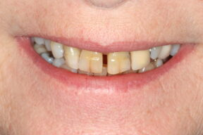 Cosmetic Dentistry  smile makeover Before