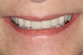 Cosmetic Dentistry smile makeover After teeth whitening and veneers