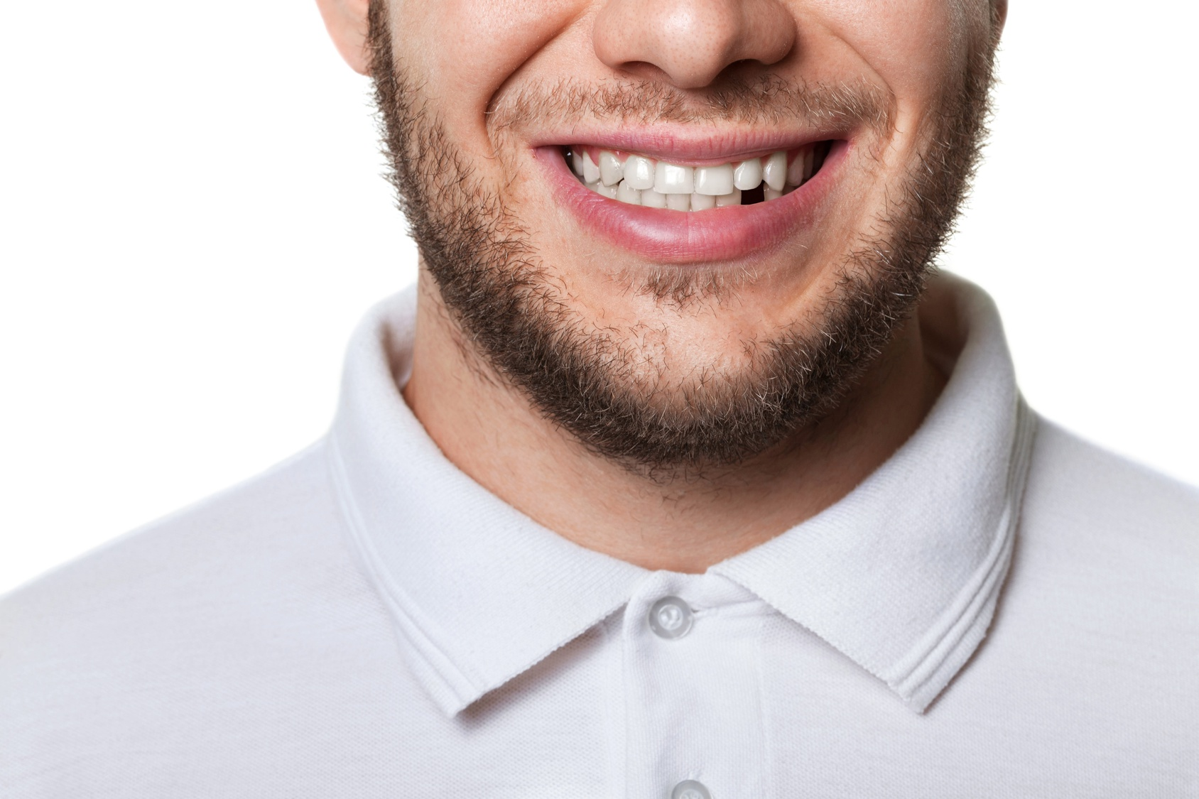 man smiling with a missing teeth | dental implant in York